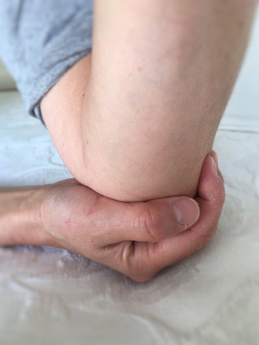Laoli_Vital_Sehne-Tennisarm-Tennisellbogen_Symptome-Lösung